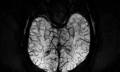 MRI / Procedures - M1 Imaging Center