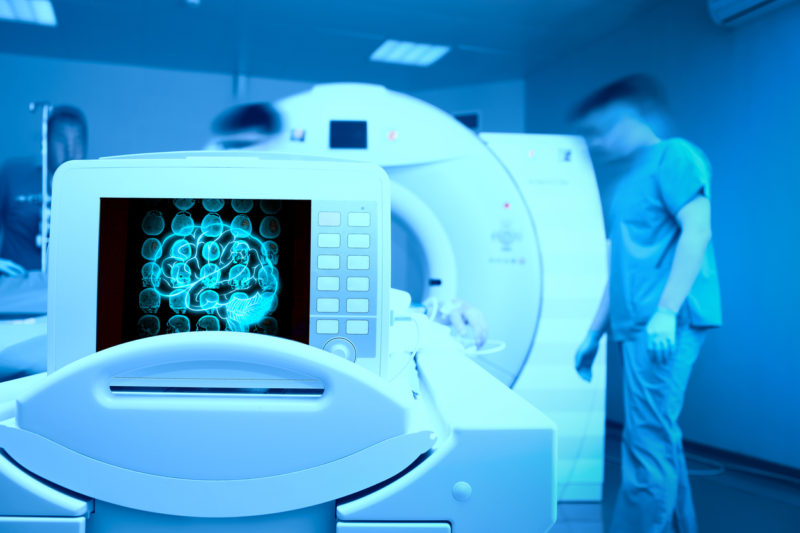 NeuroQuant technology scans for MRI