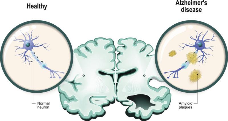 Introducing NeuroQuant